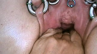 Insertion Semen in Cervix Pussy Speculum. Cum in Uterus